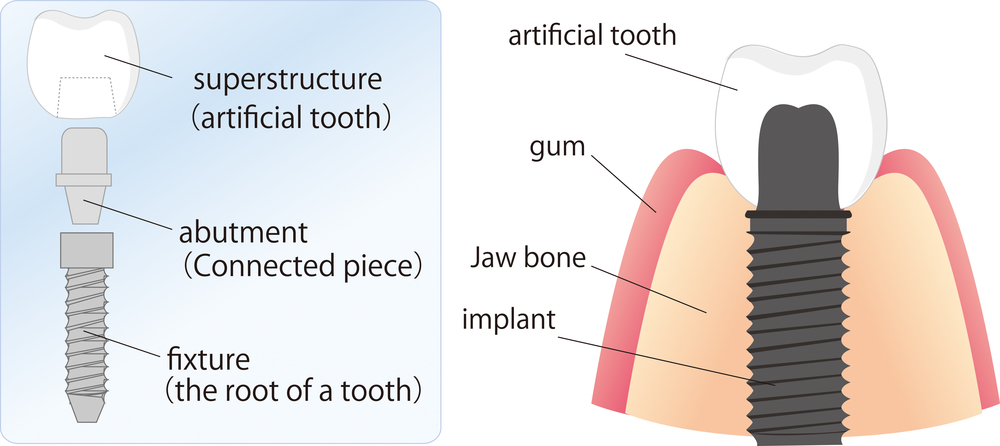 Image of the parts of a dental implant