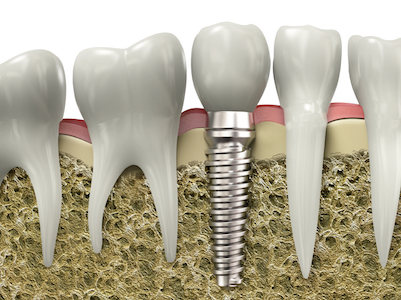 Image of the dental implant process result of how it fits in the jaw between natural teeth.